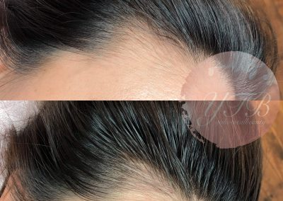 hair-line-gallery-01