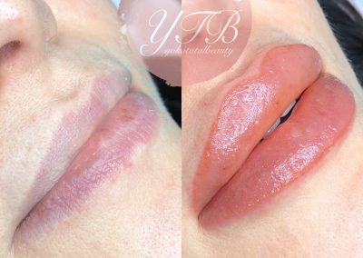 lip-tinting-gallery-19
