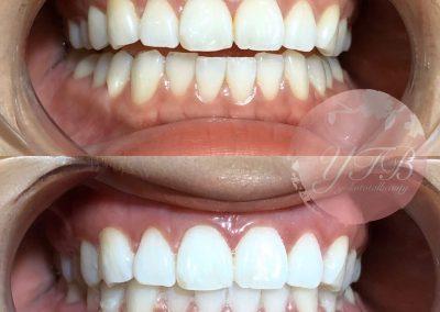 teeth-whitening-gallery-01