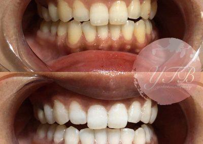 teeth-whitening-gallery-03